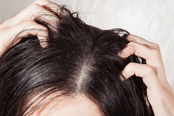 Effective Home Remedies to Get Rid of Dandruff.png