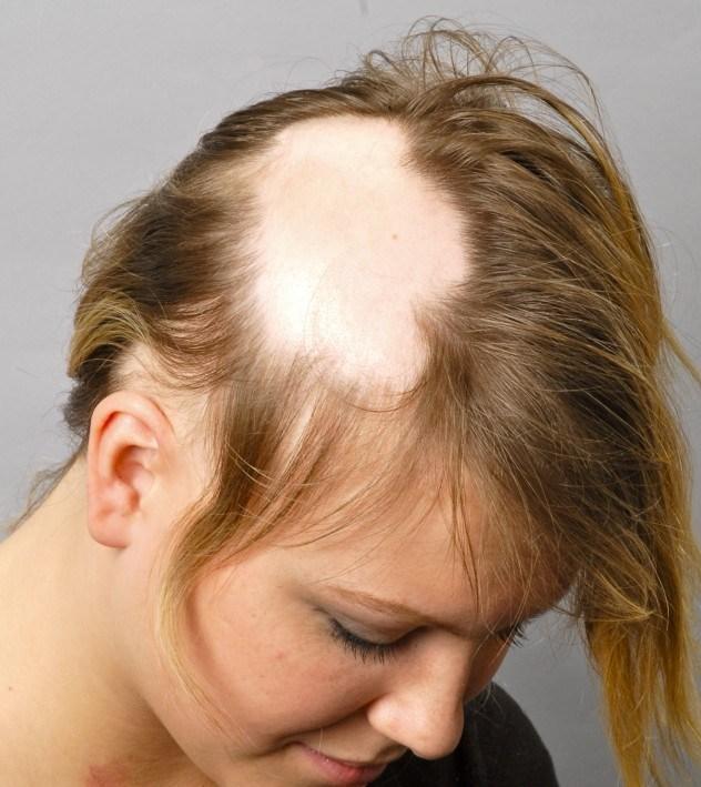 Выпадают ли короткие волосы