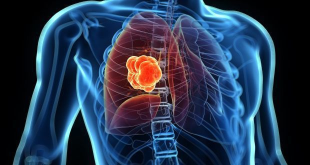 lung cancer.jpg