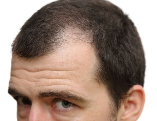 Are You At Risk For Male Pattern Baldness Adorable Male Pattern Baldness